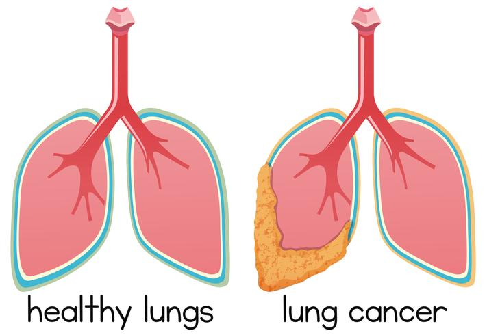 A Cartoon of Lung Condition