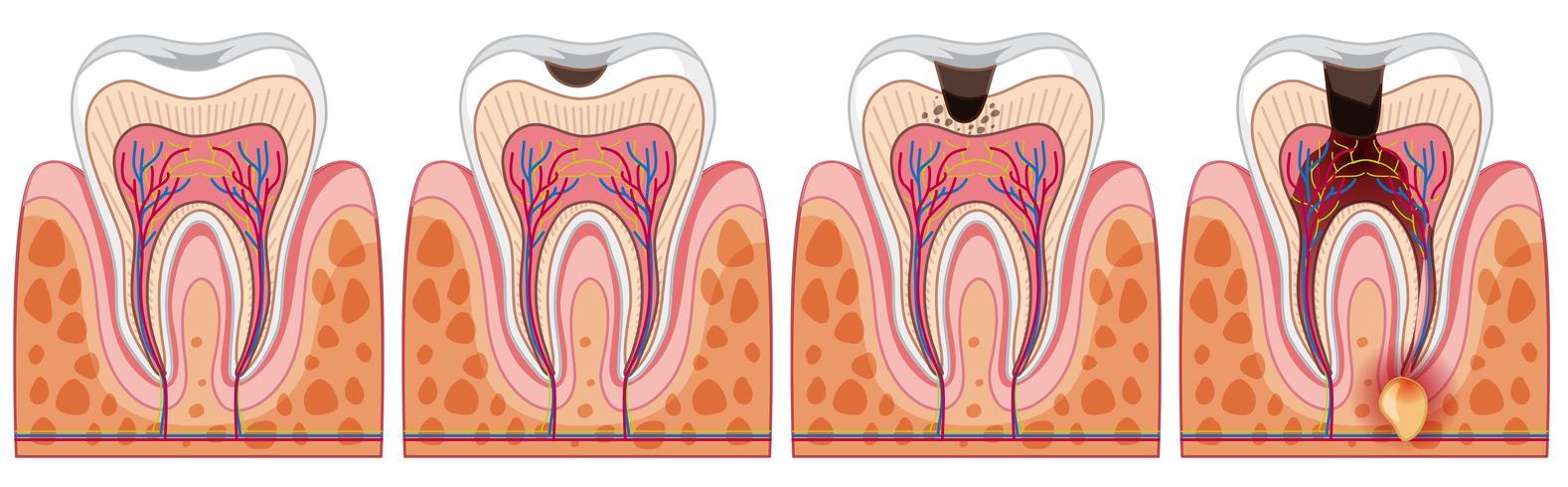 En uppsättning mänsklig tand