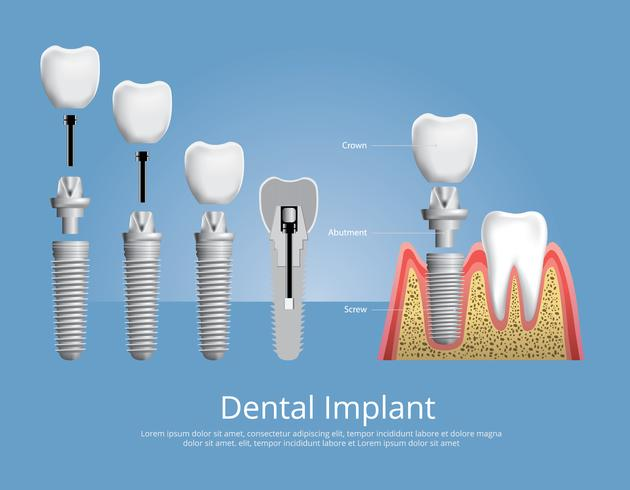 Illustration vectorielle de dents humaines et implant dentaire vecteur