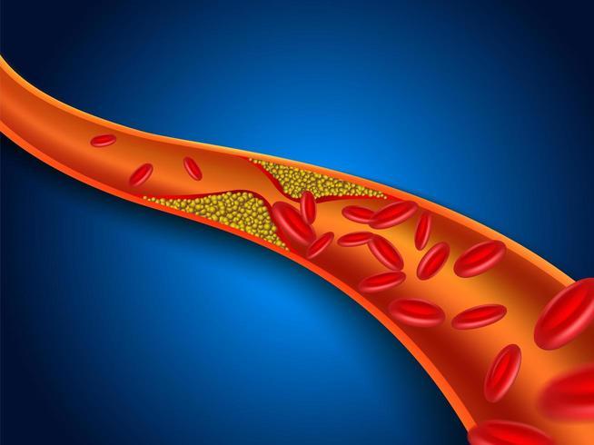 Verstopte bloedvaten tekenen vector