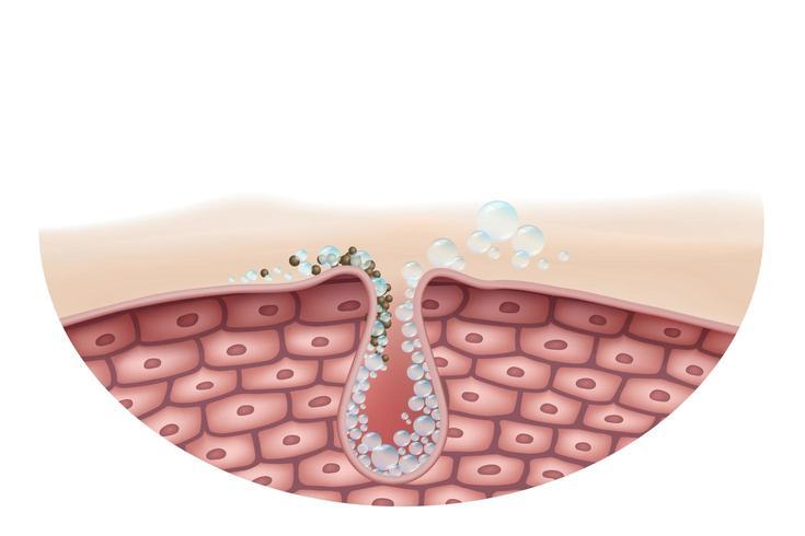 Schließen Sie herauf Querschnitt der Hautreinigung