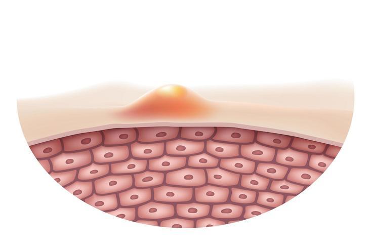 Nahaufnahme von Akne auf der Oberfläche der Haut vektor