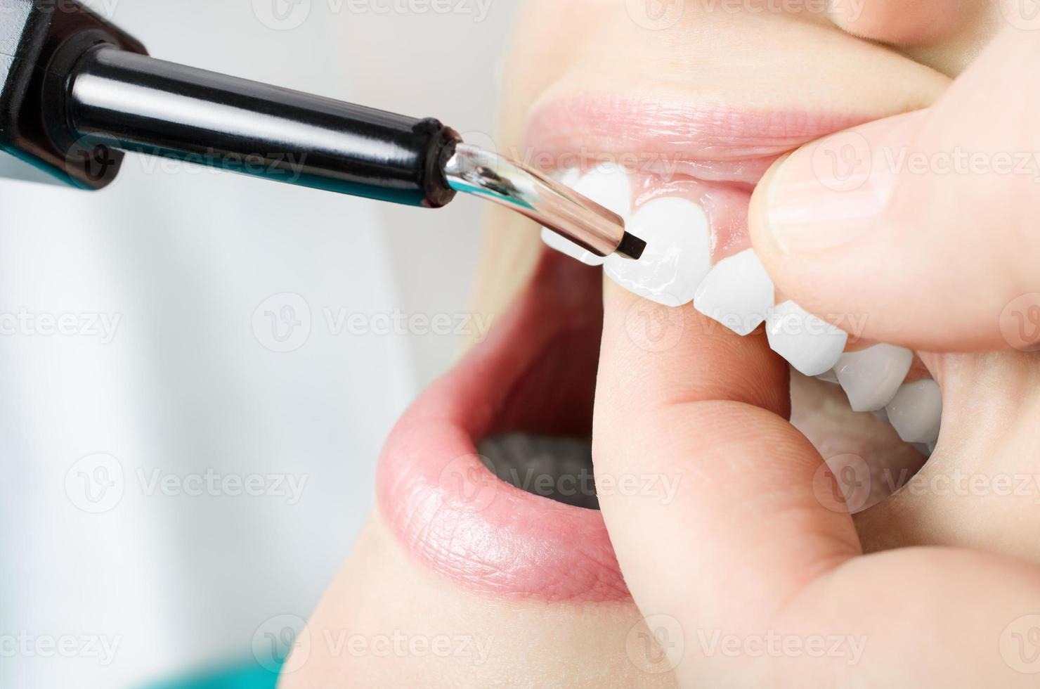 Teeth vitality exam. Close up photo