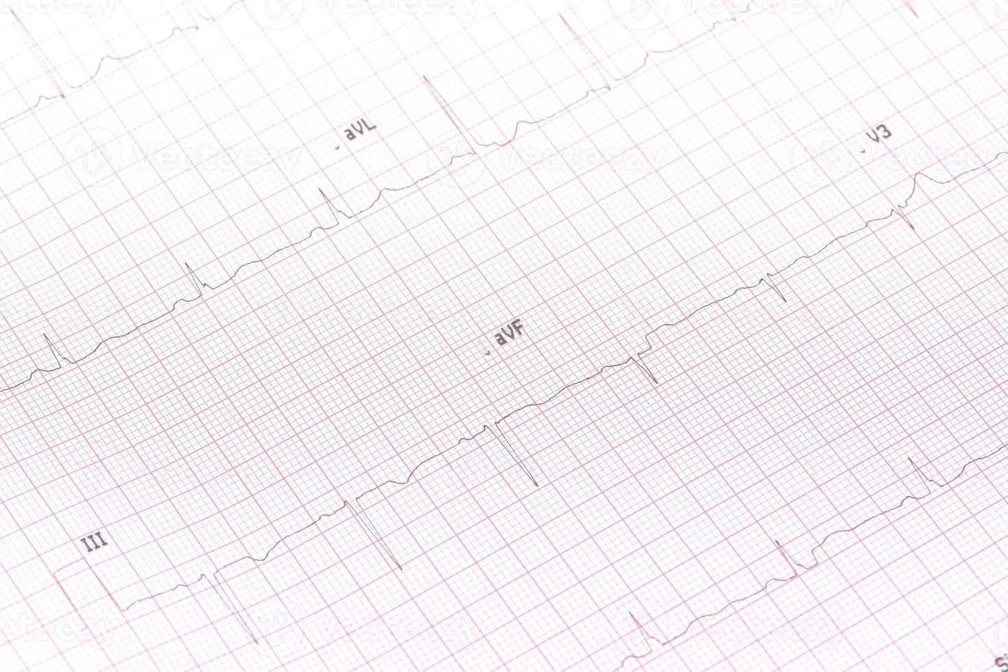 Electrocardiogram close-up photo
