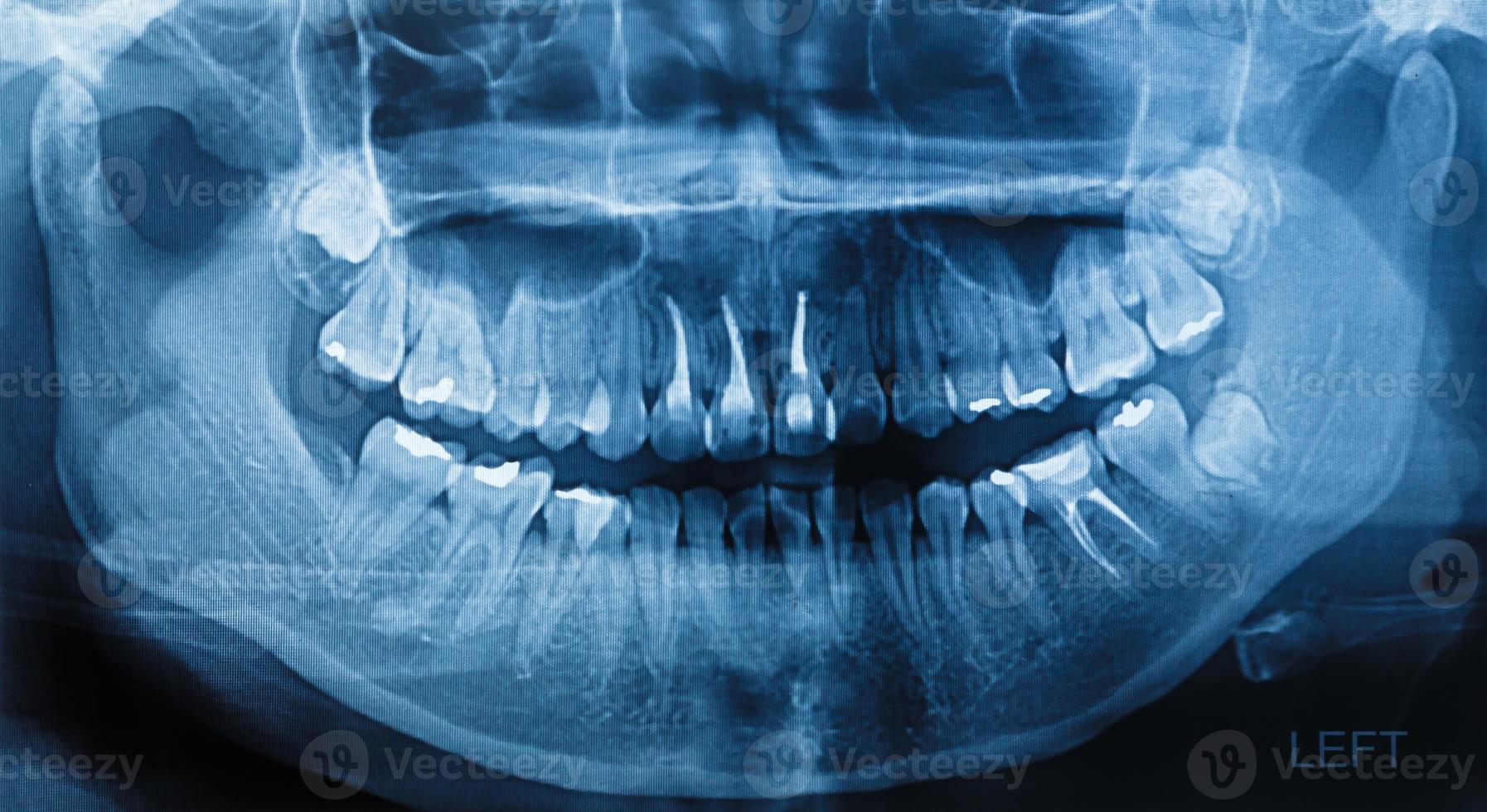 escaneo de rayos x de película humano foto