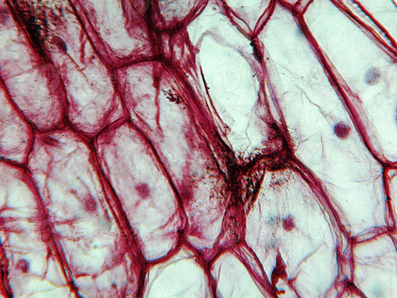 Onion epidermus micrograph photo