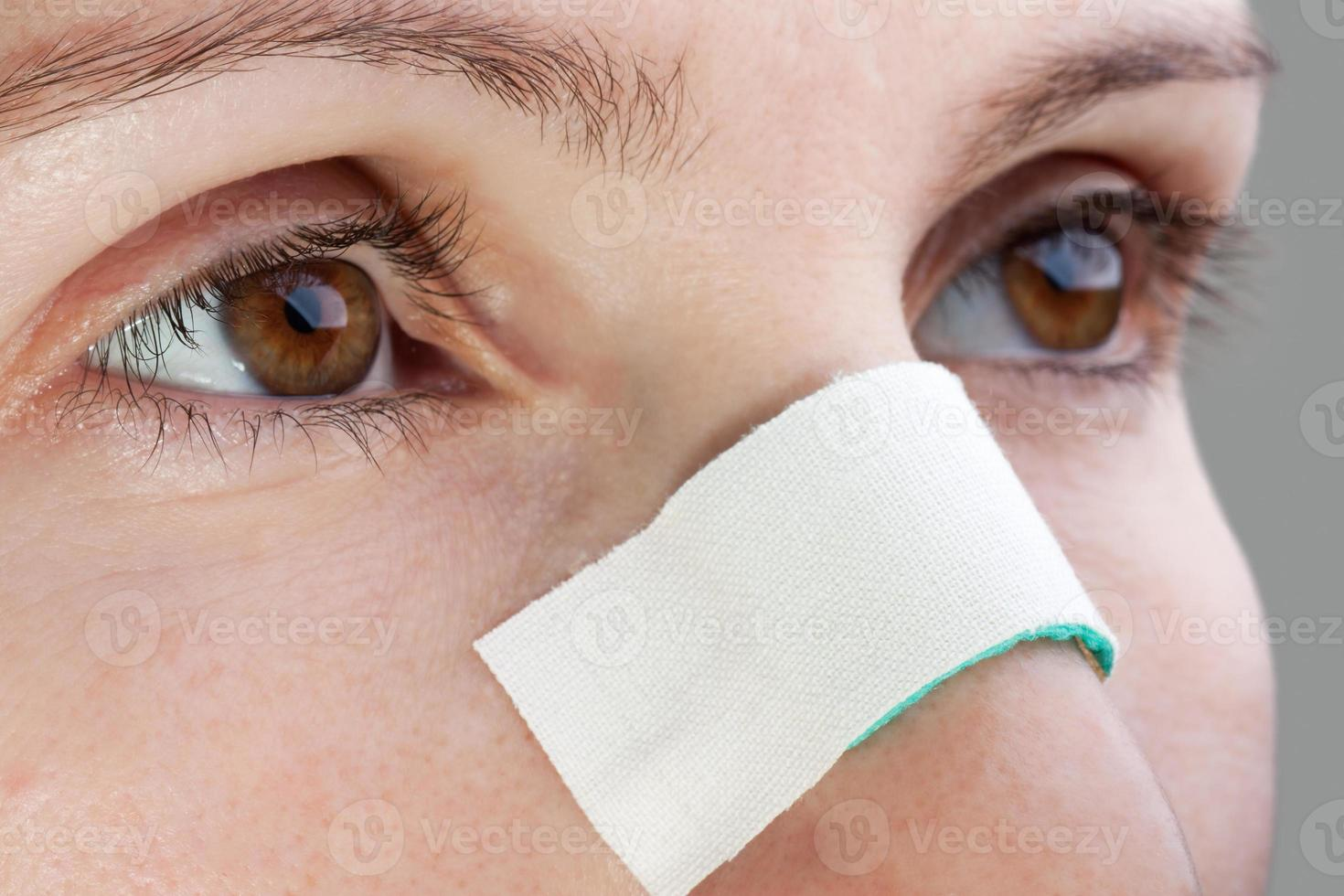 Plaster on wound nose photo