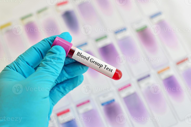 prueba de grupo sanguíneo foto