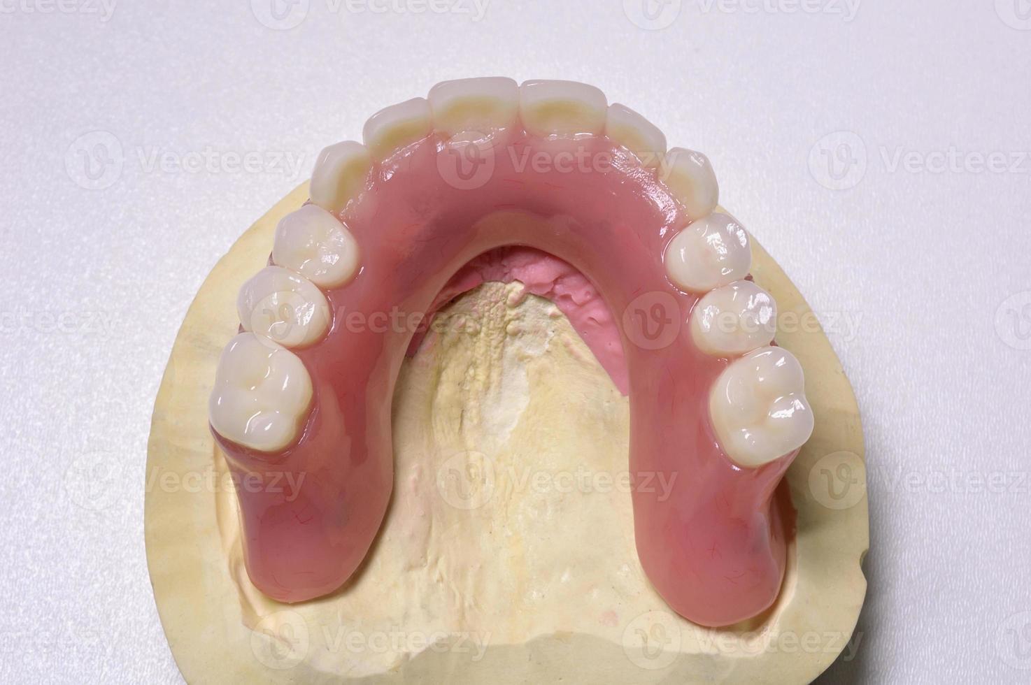 Dental prosthesis photo