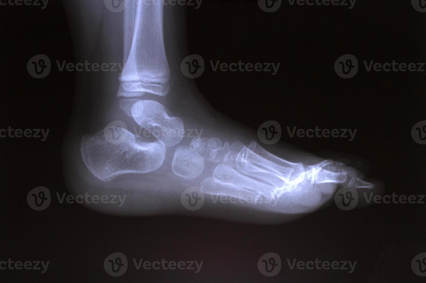 radiografía foto