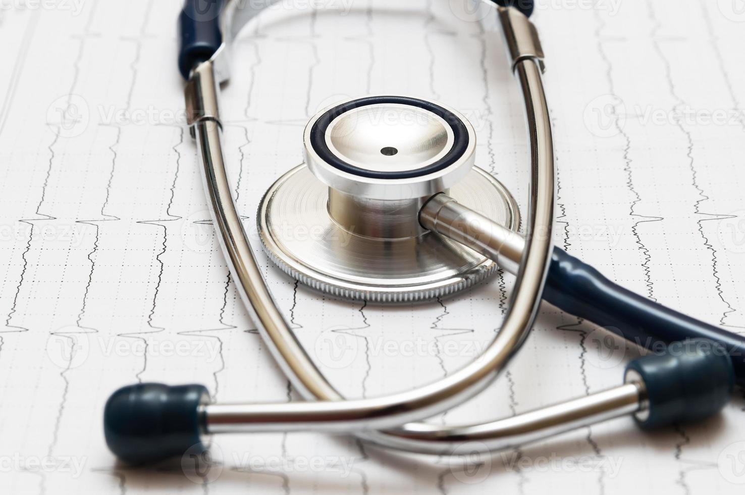 stethoscope on the cardiogram photo