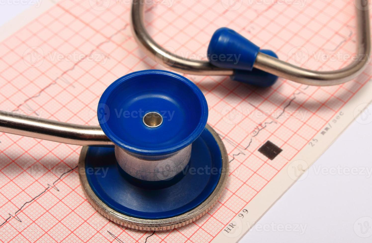Stethoscope with electrocardiogram graph report photo