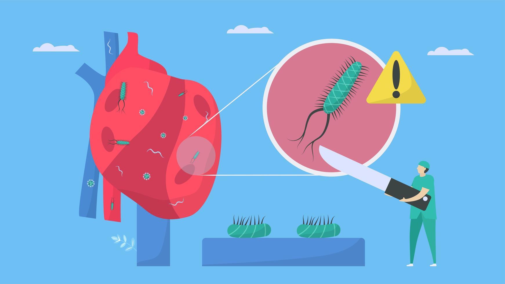 tratamento cardiológico pelo cirurgião. vetor