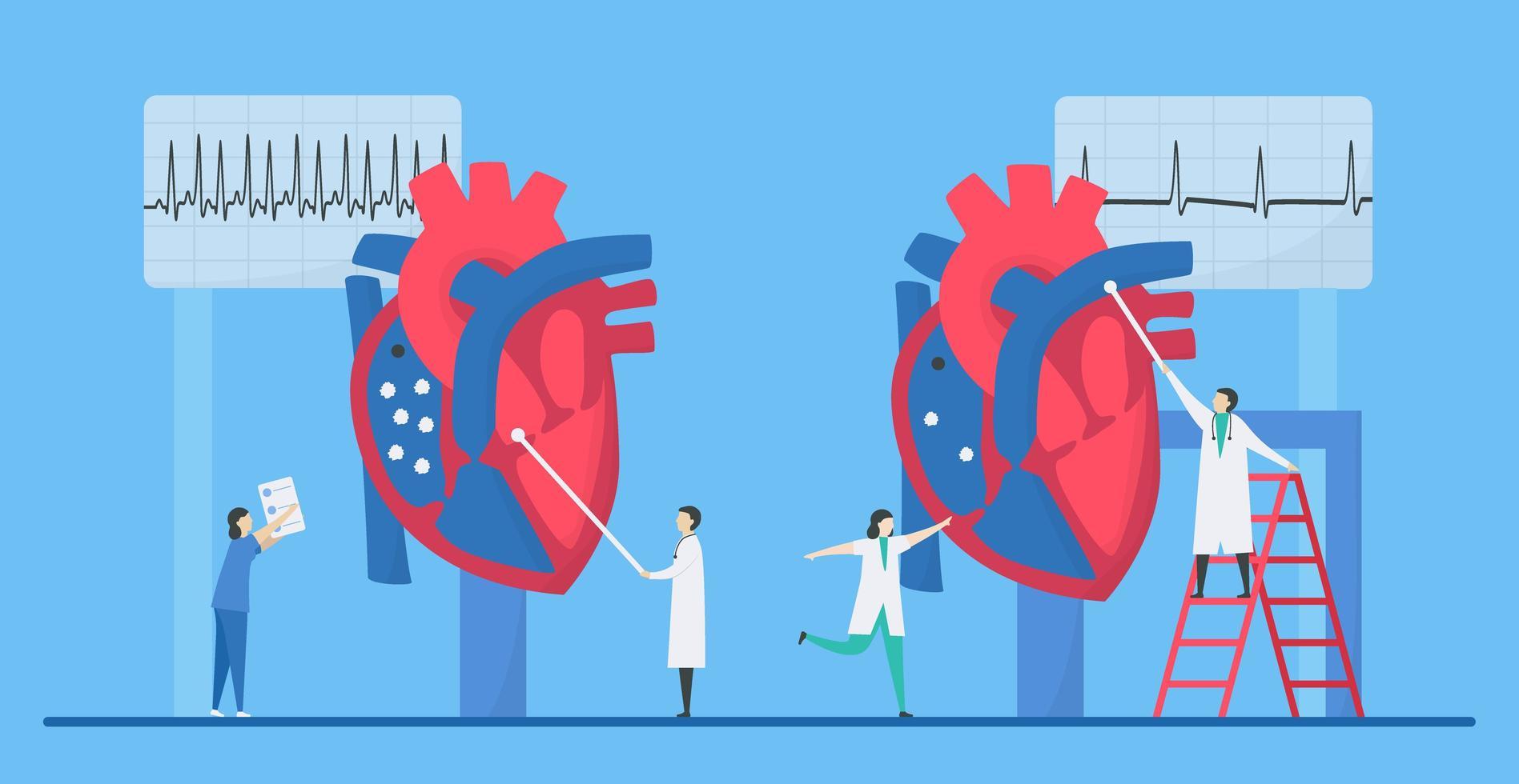 Kardiologie Tachykardie Arrhythmie Konzept vektor