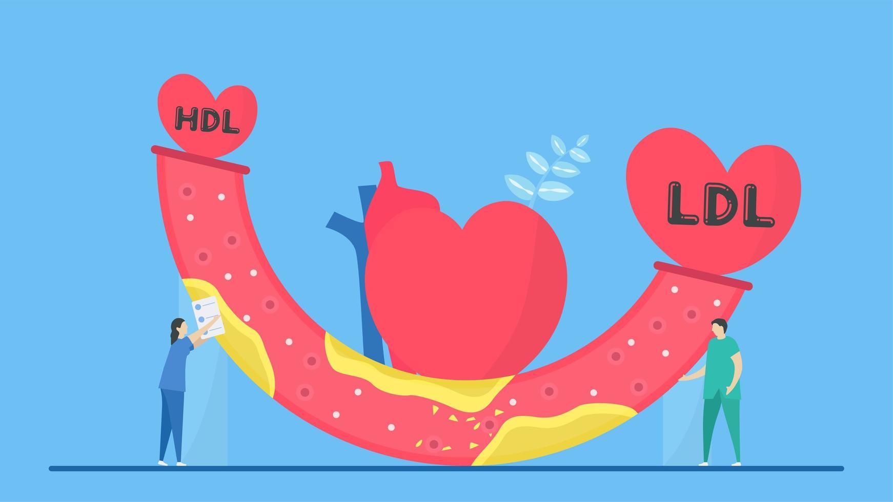 concept d'athérosclérose avec artère hdl et ldl vecteur