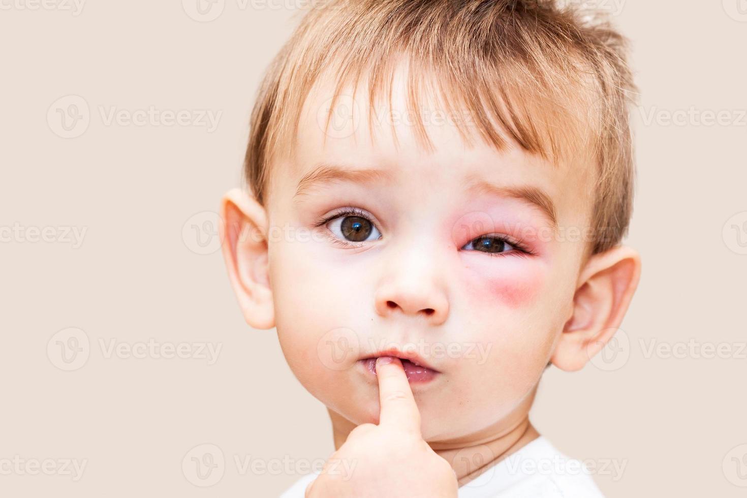 picaduras peligrosas de avispas cerca del ojo foto