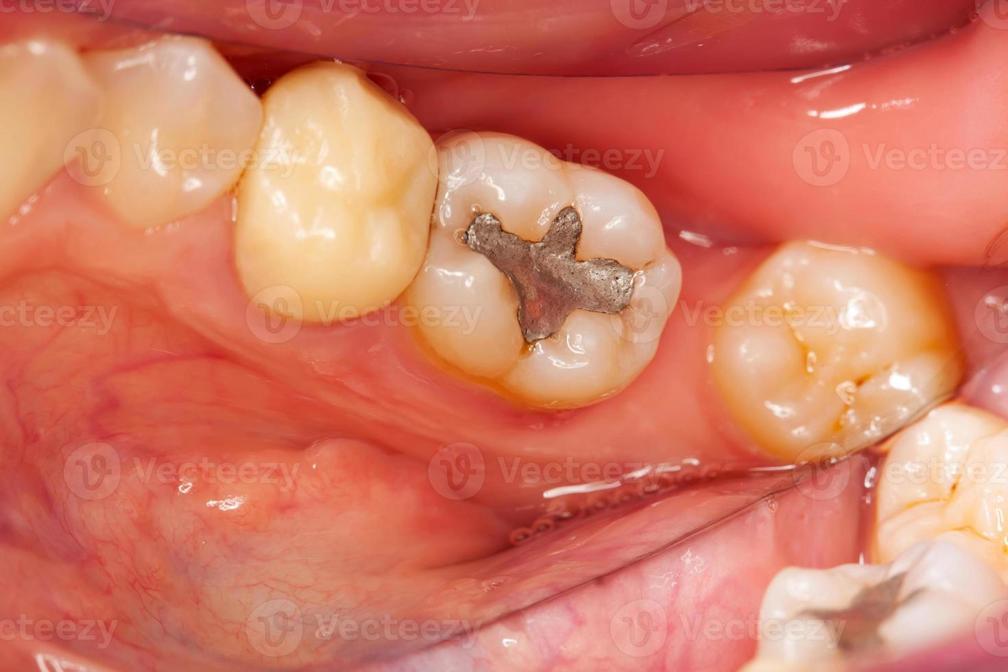 problemas dentales foto