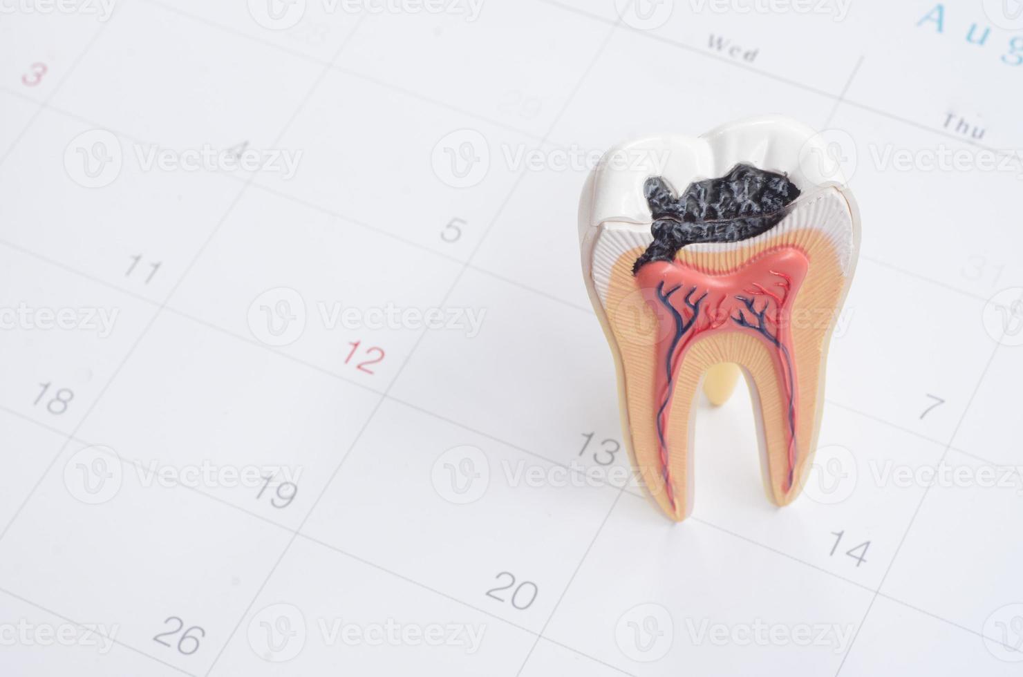 nota de cita con el dentista en el calendario foto