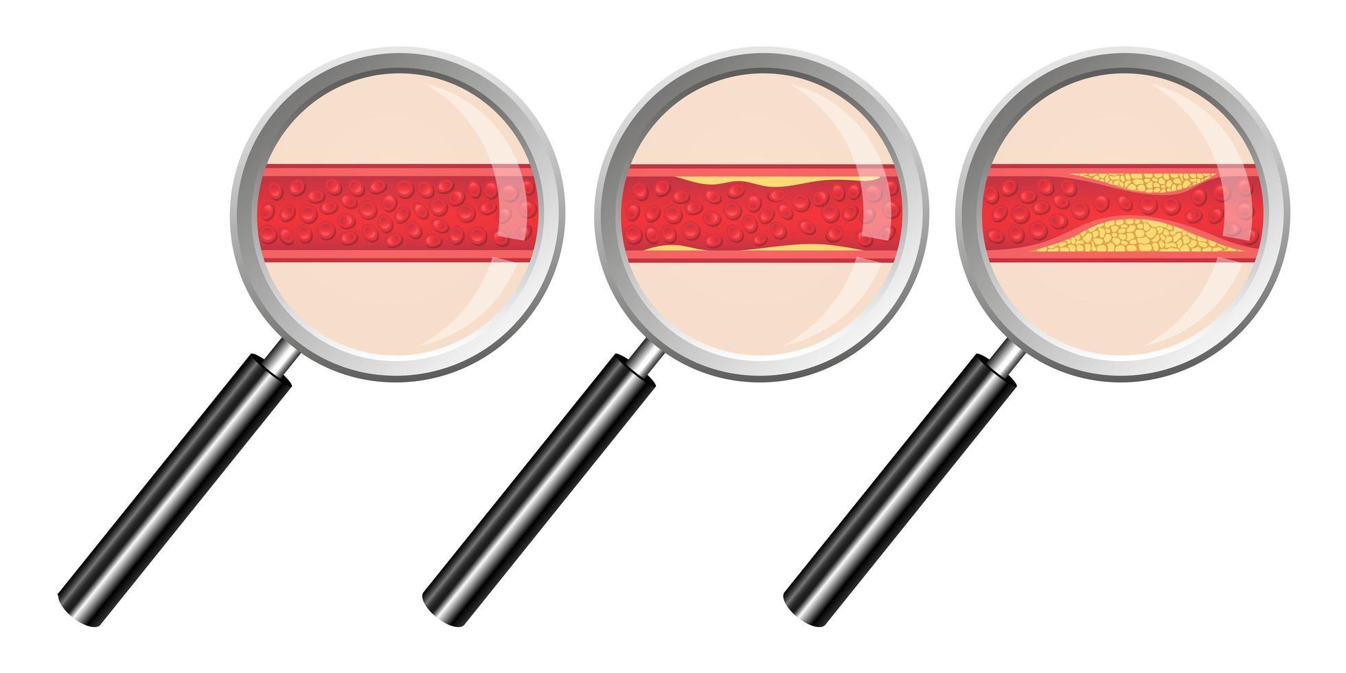 arteriosclerose geïsoleerd op een witte achtergrond vector