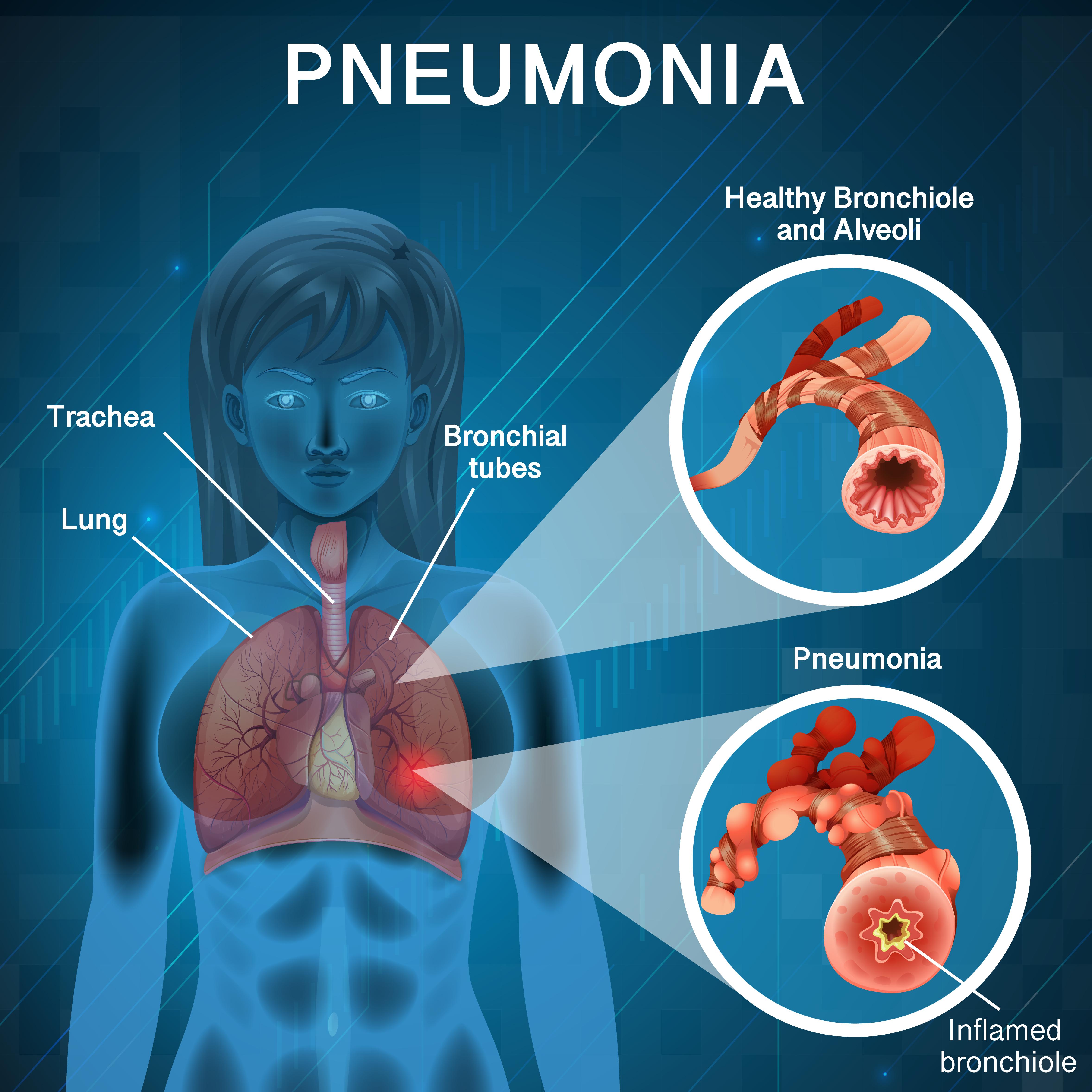 Pneumonia With Human Lungs Diagram