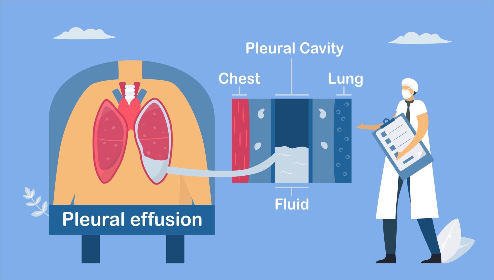 Lung disease about pleural effusion. vector