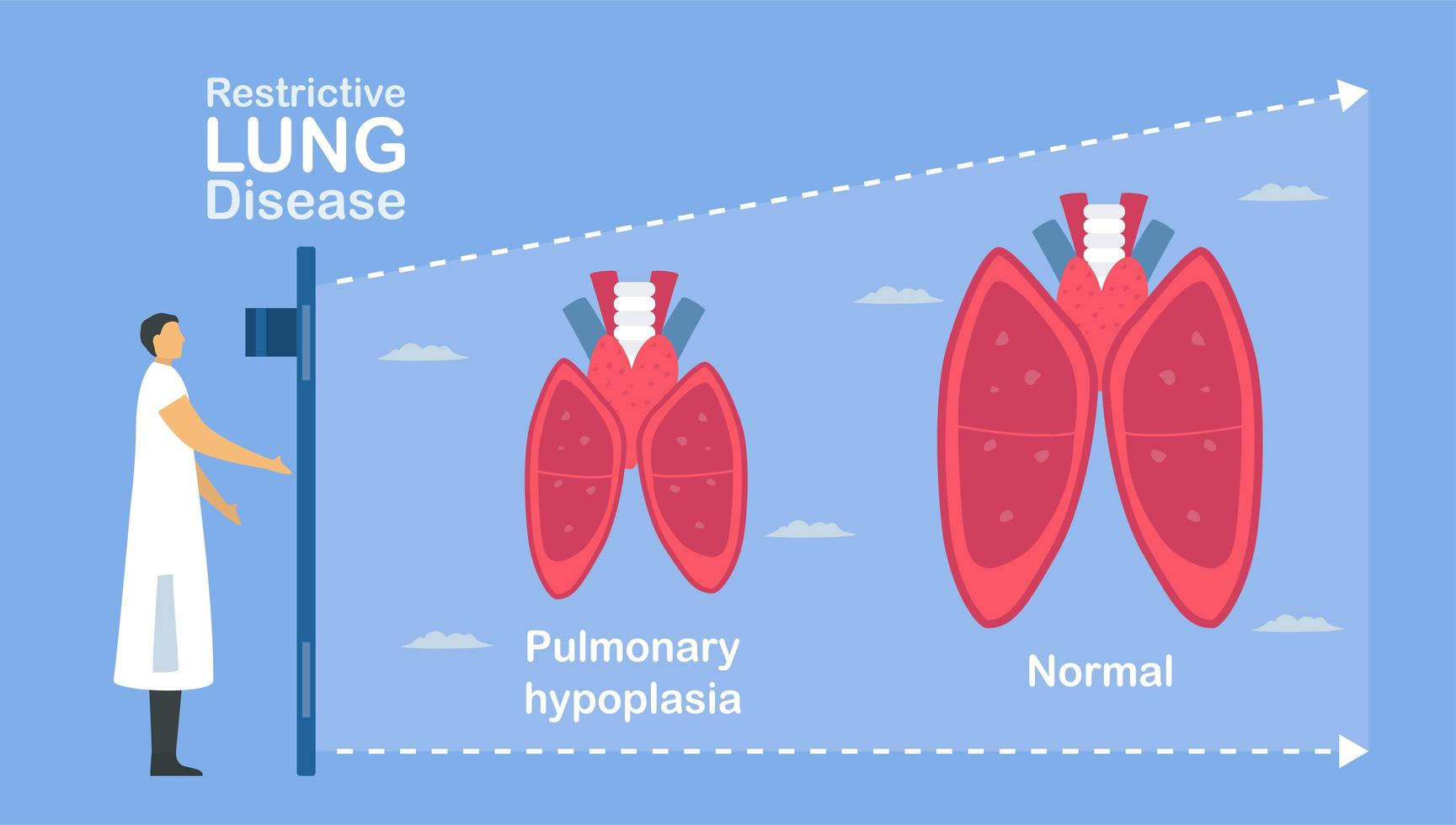 Pulmonary hypoplasia is incomplete of lungs. vector