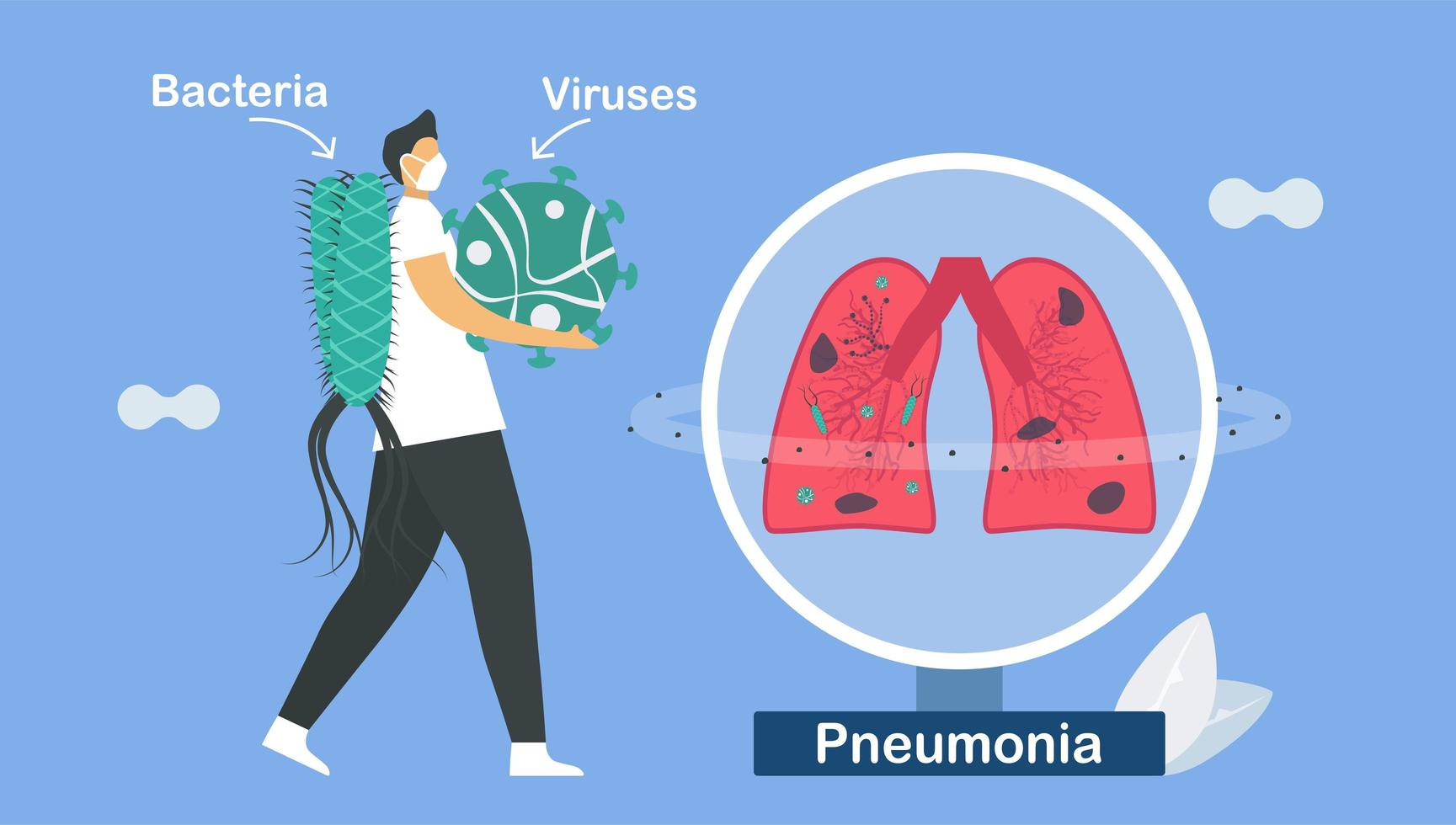Pneumonia is infection that inflames air sacs  vector