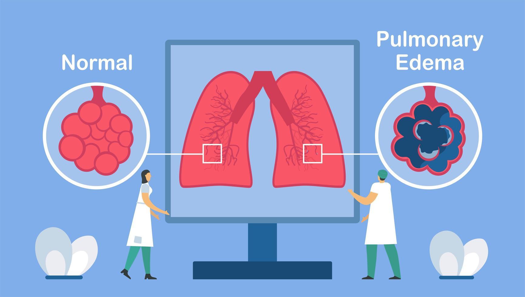 Pulmonary edema is shown good and bad alveoli.  vector