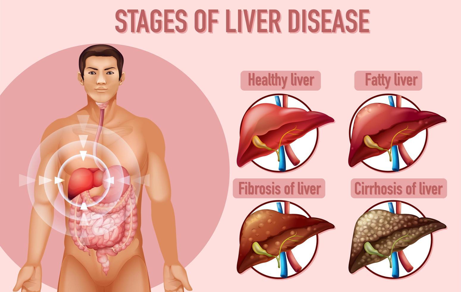 etapas del diseño educativo de la enfermedad hepática. vector