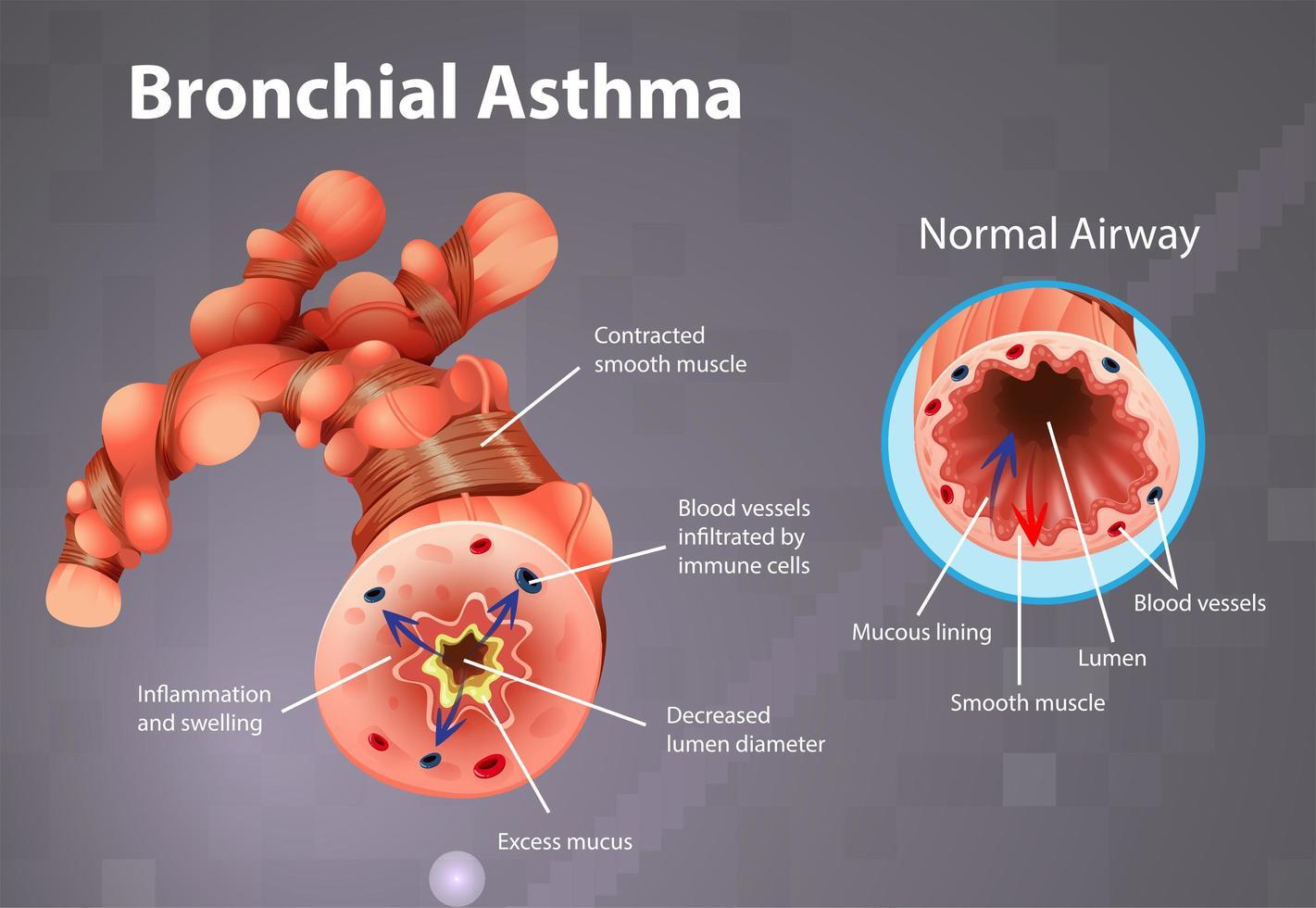 cartel de tubo bronquial inflamado por asma vector