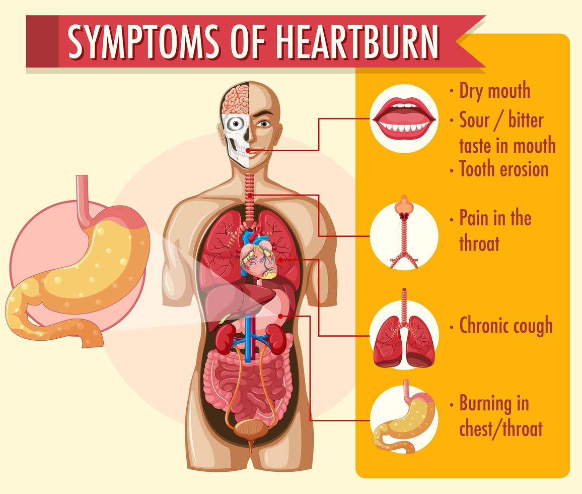 Symptoms of heartburn infographic vector