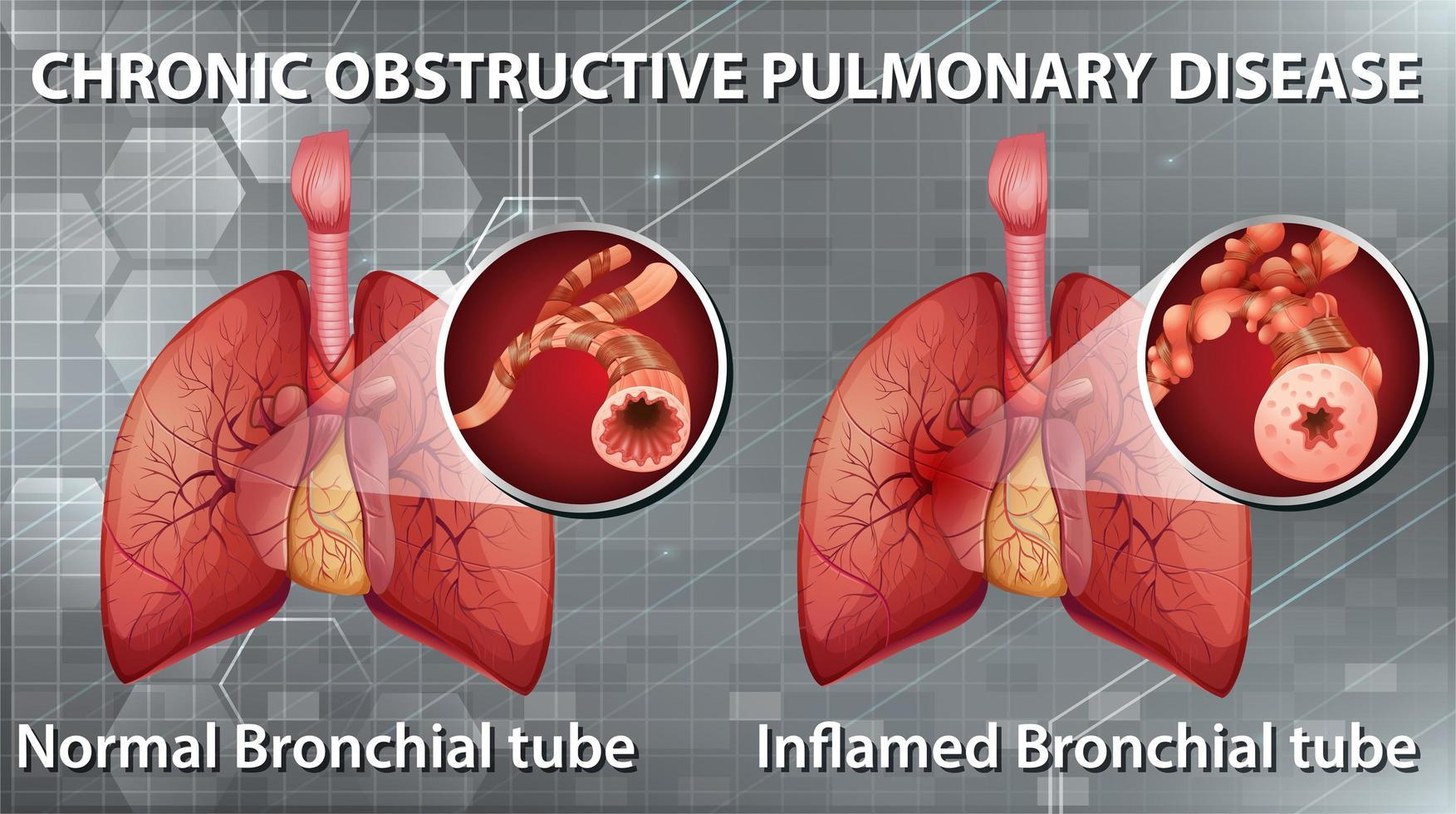 tabla de enfermedad pulmonar obstructiva crónica vector
