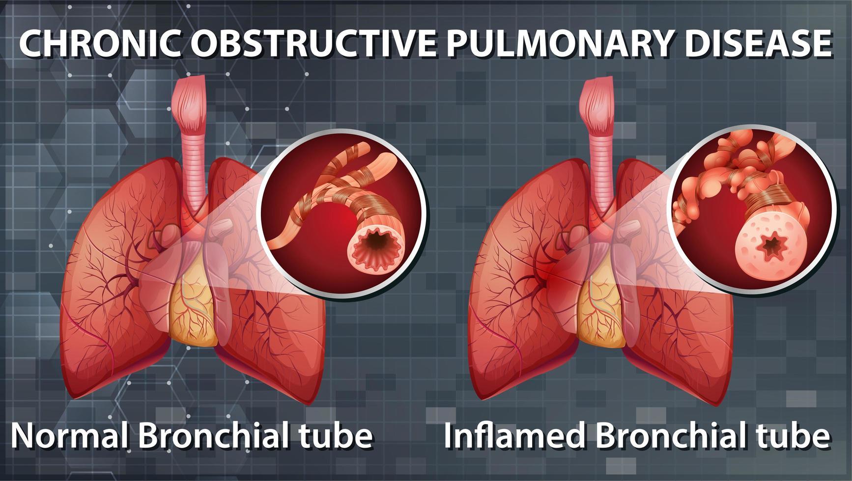 enfermedad pulmonar obstructiva crónica vector