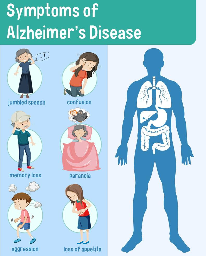 síntomas de la enfermedad de alzheimer infografía vector