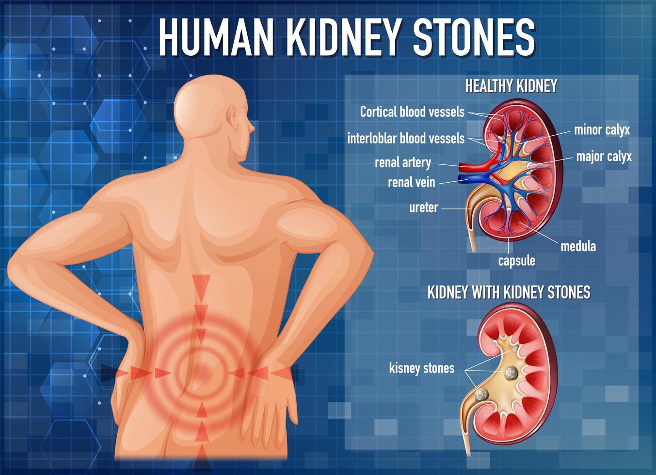 comparación de riñón sano y riñón con cálculos vector