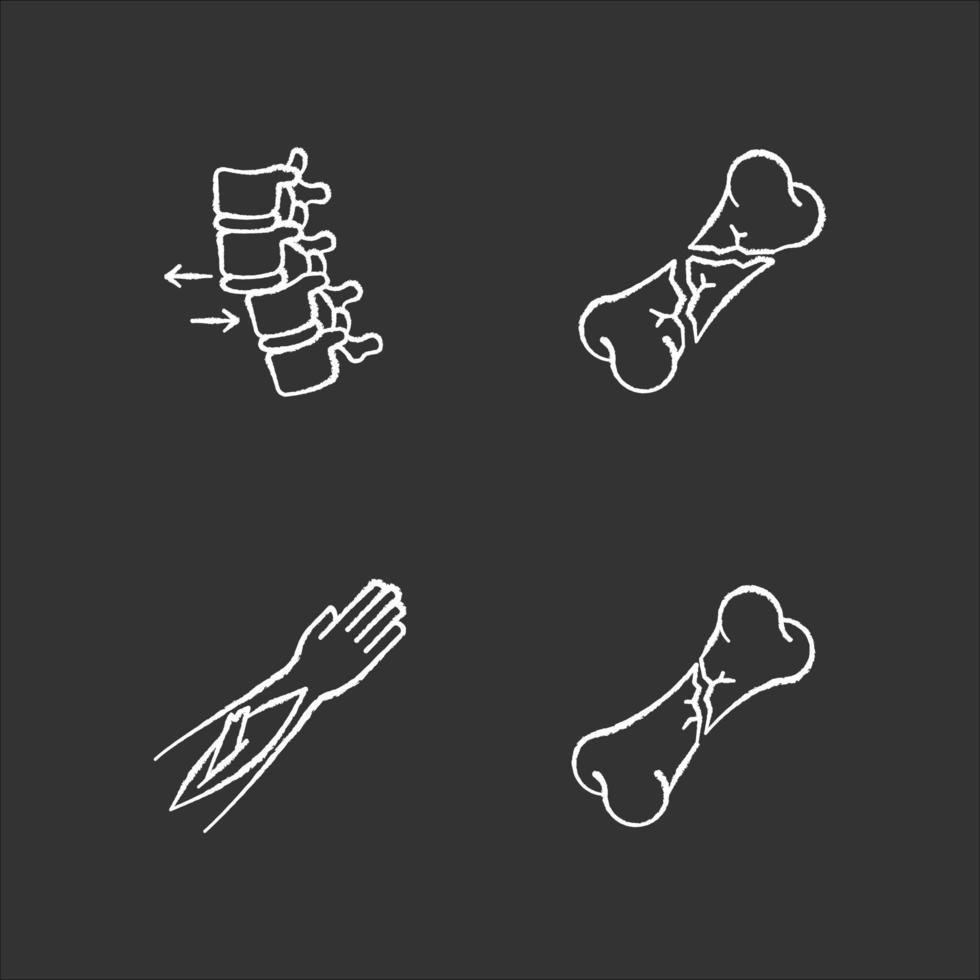 lesiones en partes del cuerpo tiza iconos blancos en fondo negro. vértebra espinal, dislocación de la columna vertebral. fractura abierta. huesos rotos. condición médica. accidente. ilustraciones de pizarra vector aislado