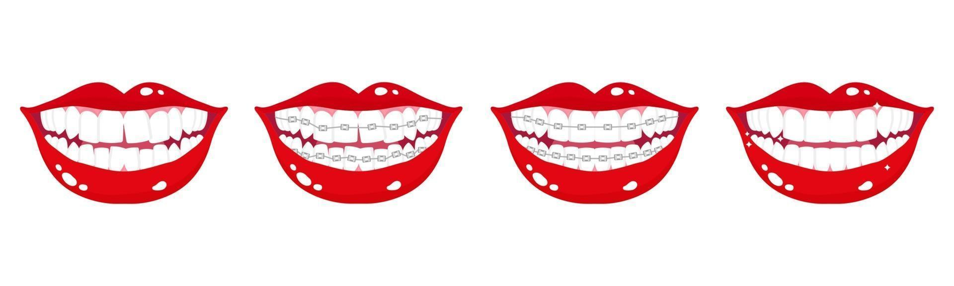 Vector cartoon set of smiling mouths with stages of teeth alignment using orthodontic metal braces on a white background