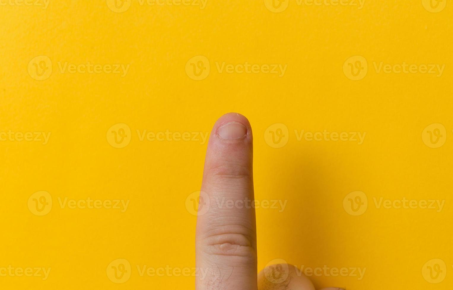 Fingers with bitten nails isolated on a yellow background photo