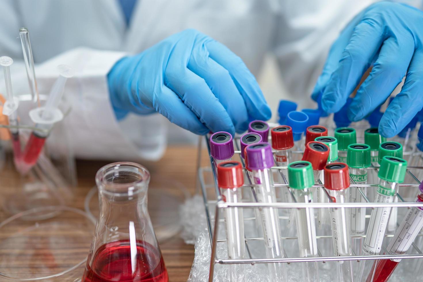 científico sosteniendo y tubo de análisis de muestra microbiológica brote de coronavirus o covid-19 infeccioso en laboratorio para médico en el mundo. foto