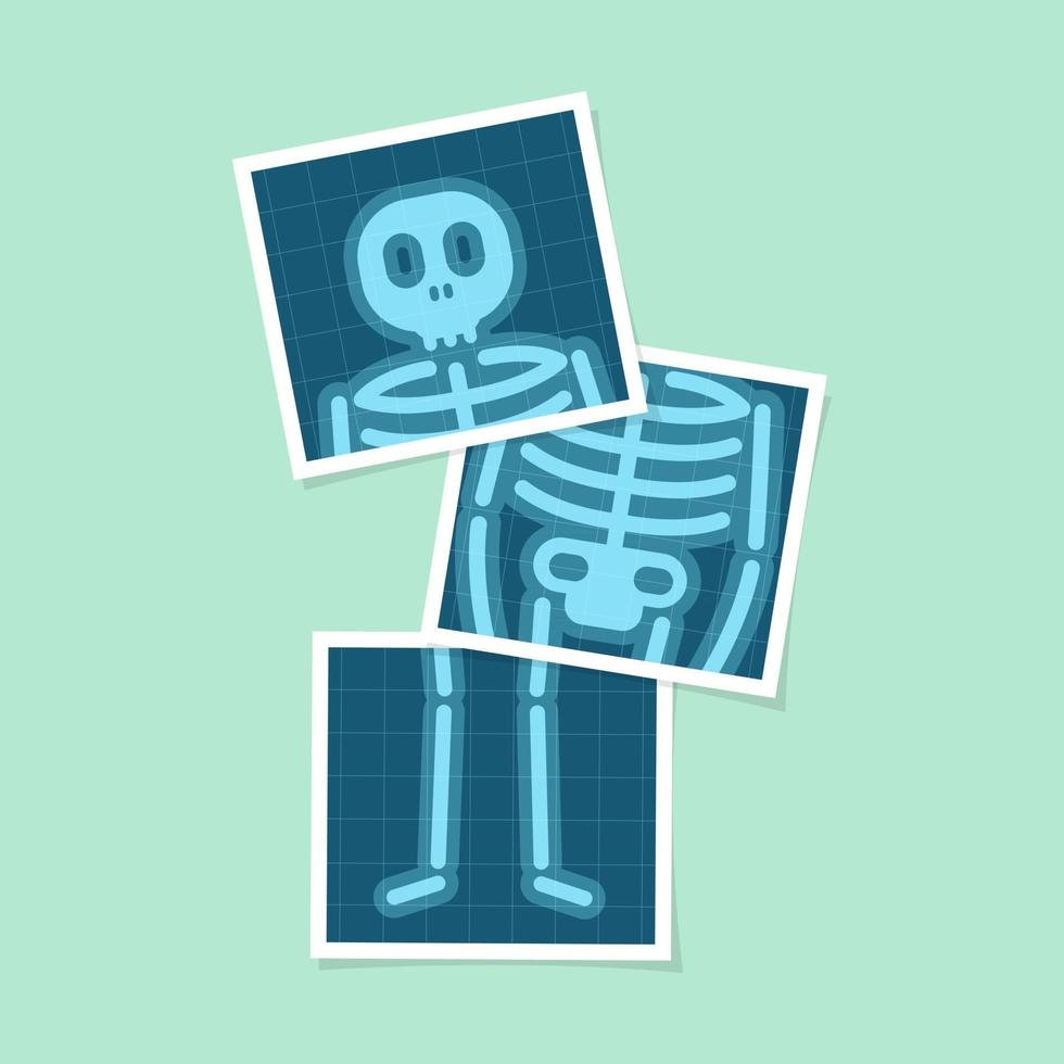 Set of body X-rays film of human body cartoon. vector