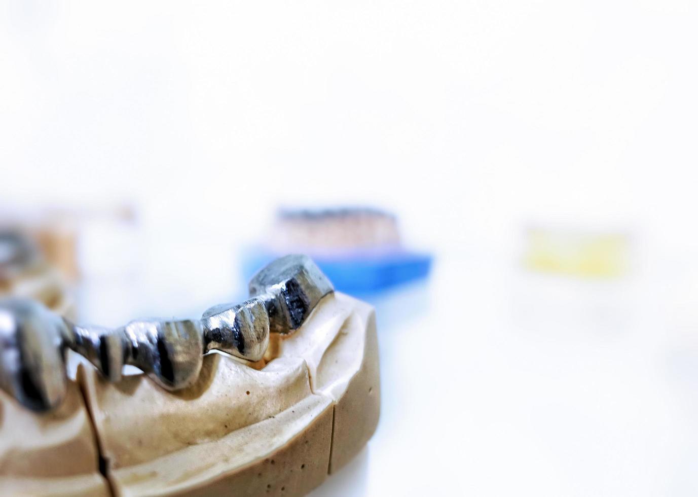placa de dientes de porcelana de circonio foto