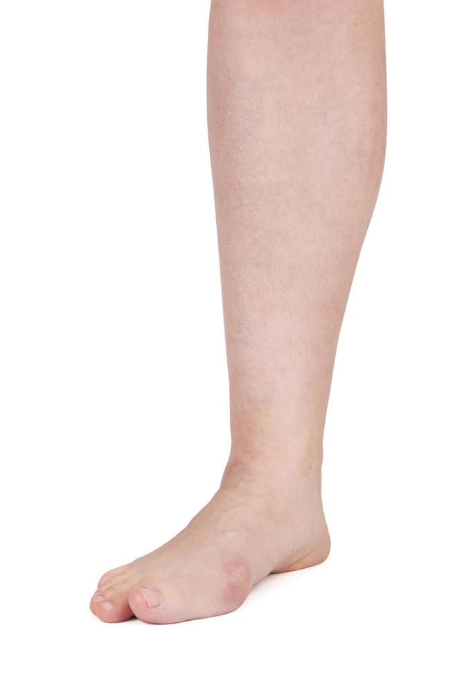 pierna con dolor en las articulaciones foto