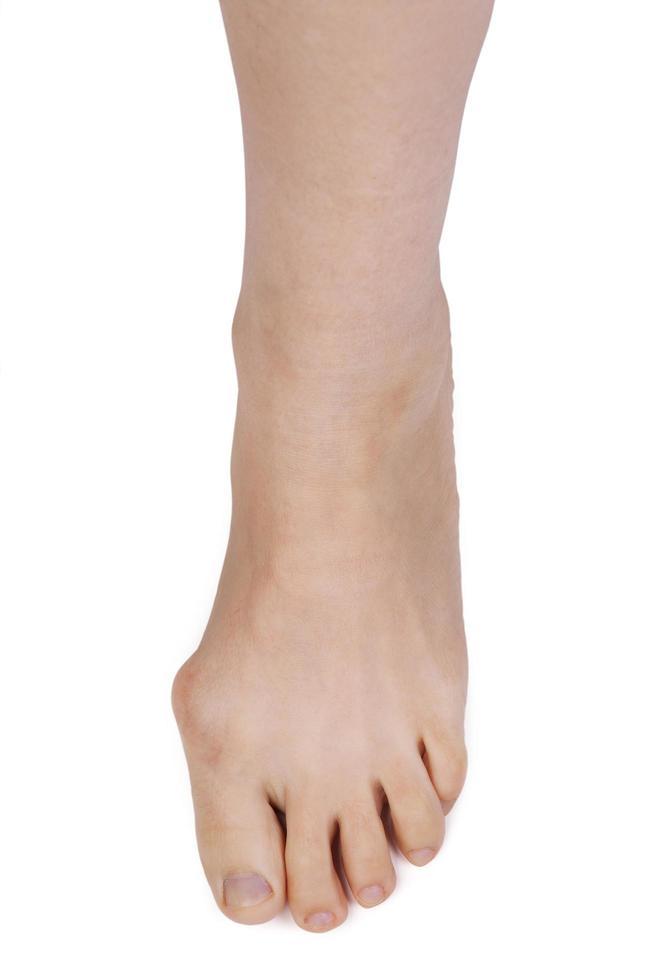 pierna con articulación deformada foto