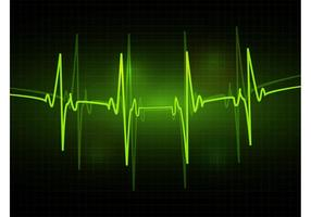 ECG Vector
