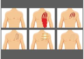 Rasgando vetores de feridas