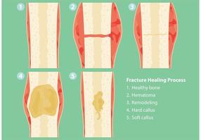 Fracturen en genezingsprocesvectoren