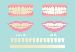 Vecteurs de dents propres et sales