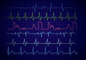 Vector del monitor del corazón