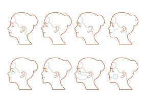 Cirurgia do rosto