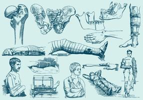 Blue Fracture Treatment Illustrations